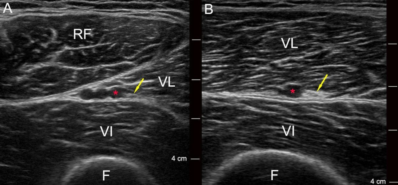 Pain relief after total knee arthroplasty with vastus lateralis