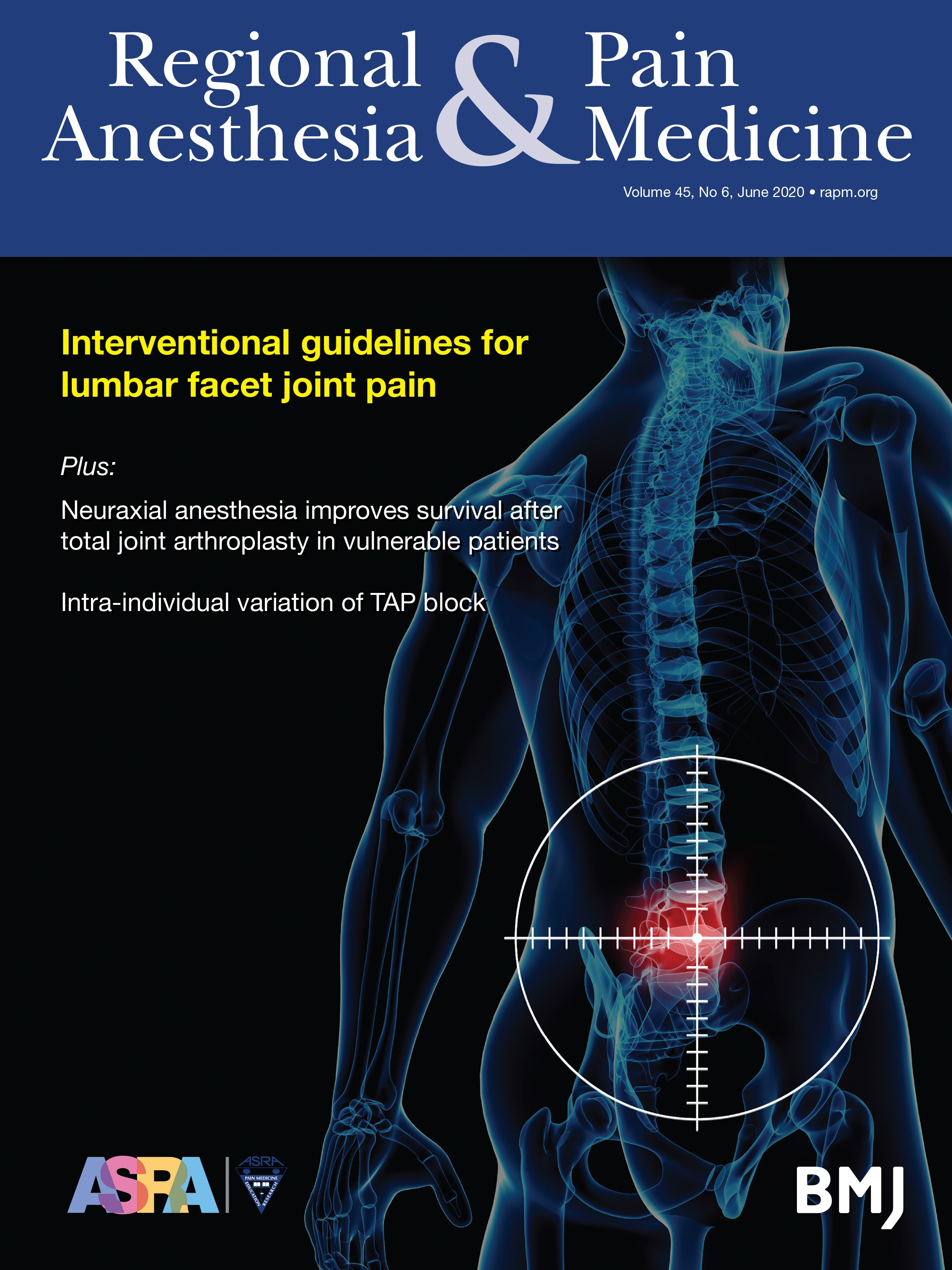 Consensus Practice Guidelines On Interventions For Lumbar Facet Joint Pain  From A Multispecialty, International Working Group | Regional Anesthesia &  Pain Medicine